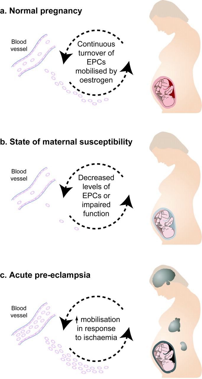 Endothelial progenitor cells in pregnancy in: Reproduction
