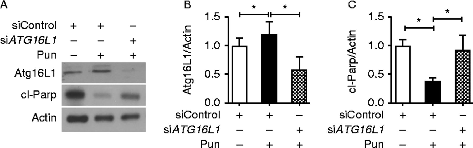 Punicalagin promotes autophagy to protect primary human