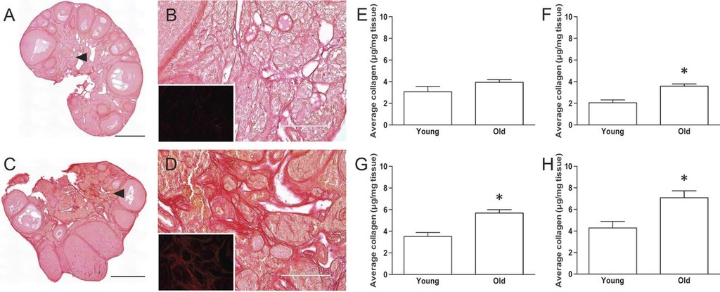 Reproductive age-associated fibrosis in the stroma of the