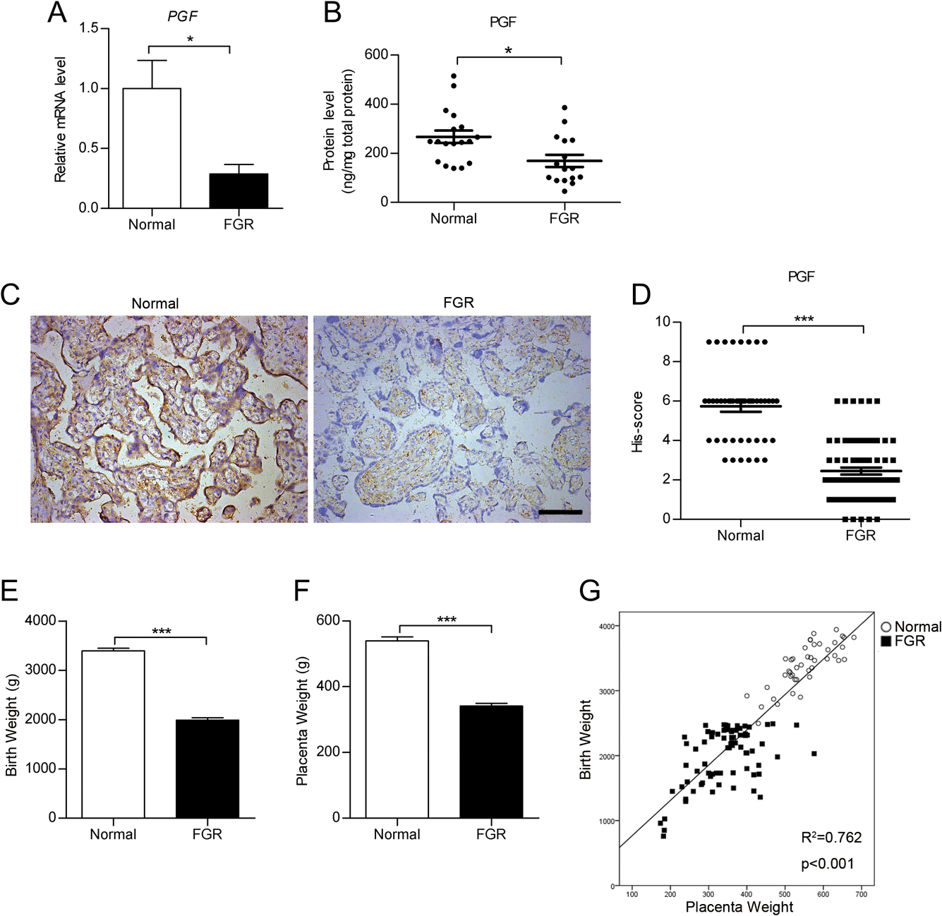Decreased PGF may contribute to trophoblast dysfunction in