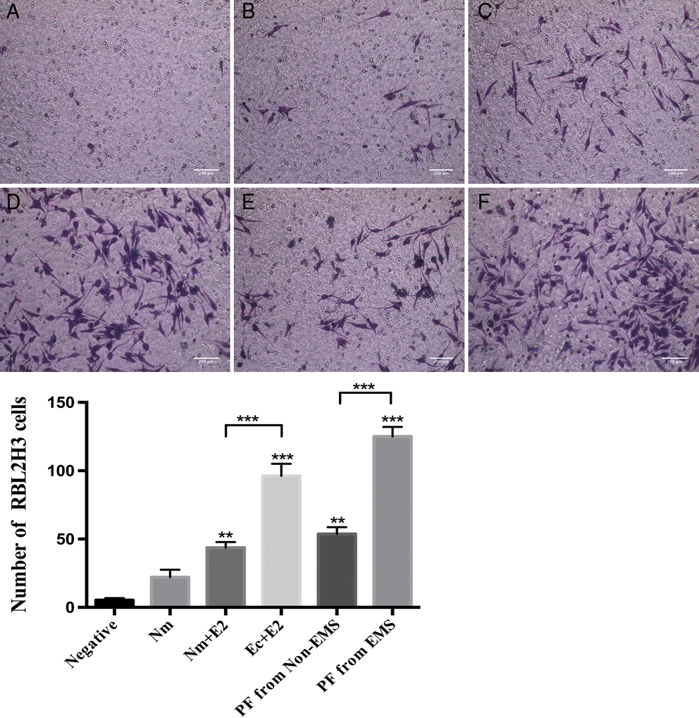 Estrogen is an important mediator of mast cell activation in