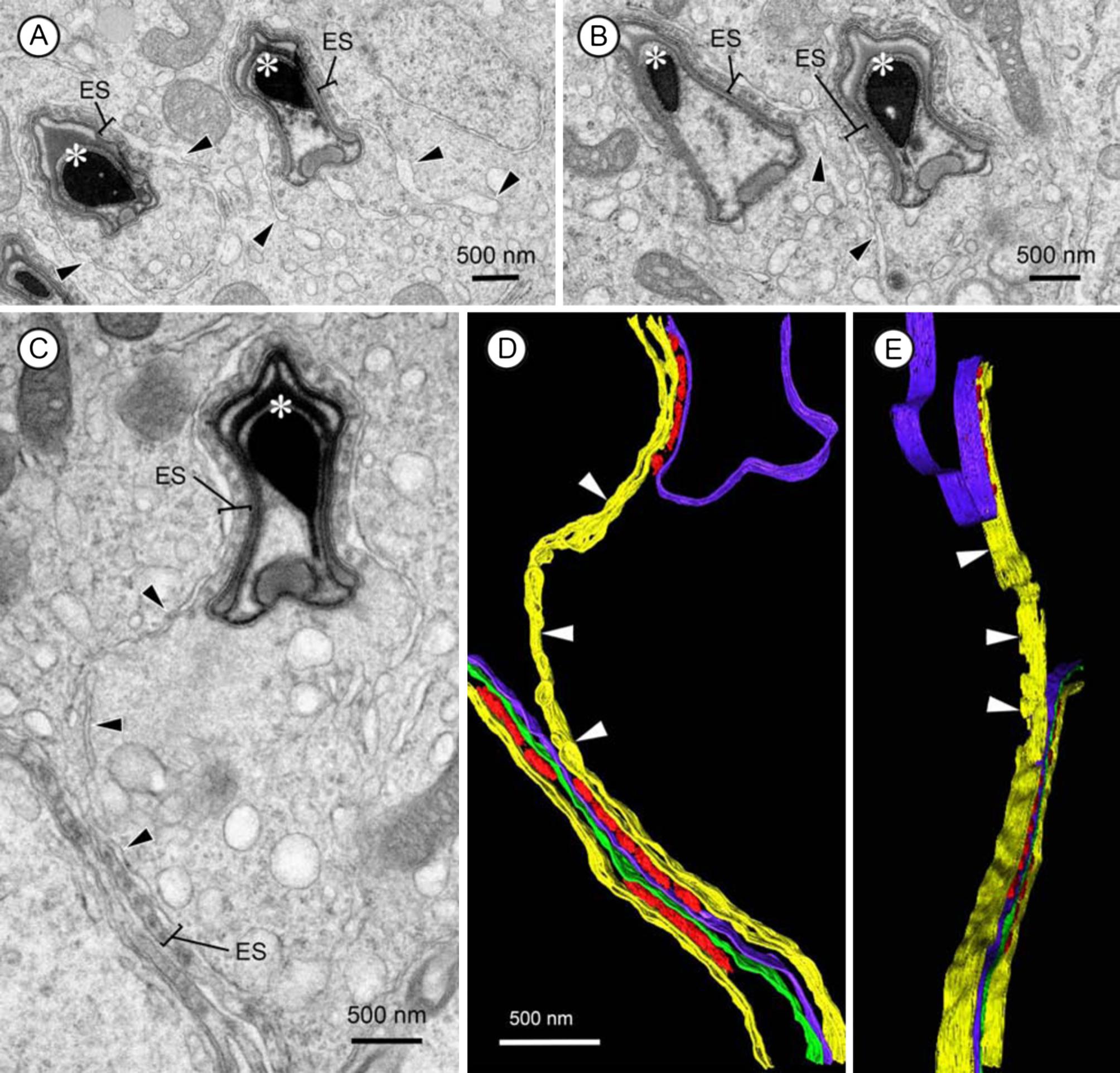 The endoplasmic reticulum, calcium signaling and junction