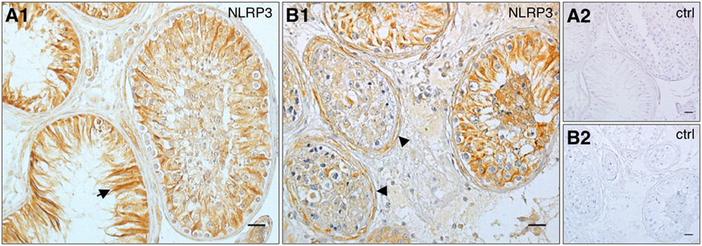 NLRP3 in somatic non-immune cells of rodent and primate testes in