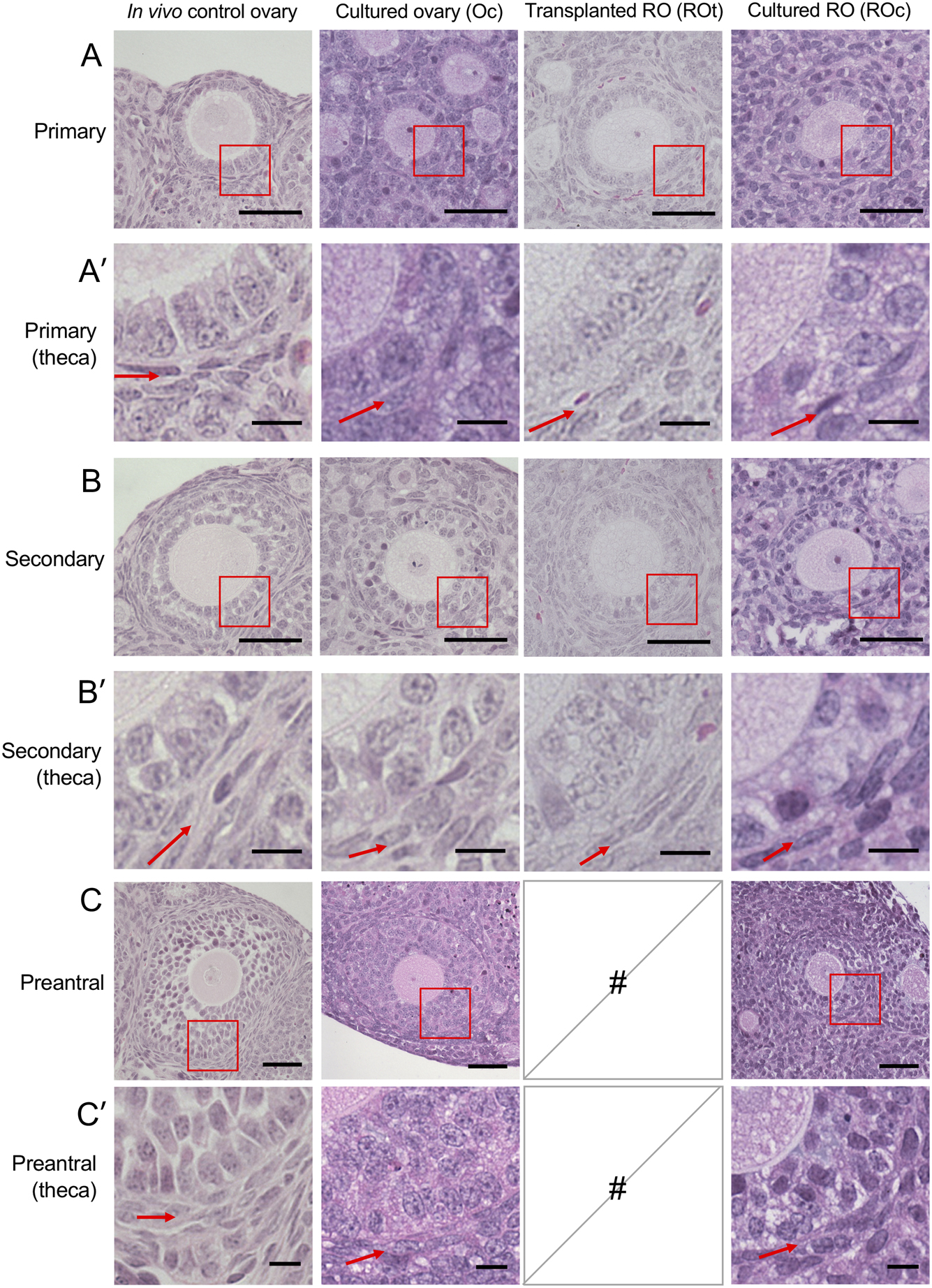 In vitro and in vivo mouse follicle development in ovaries and